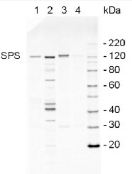 SPS | Sucrose phosphate synthase, global in the group Antibodies for Plant/Algal  / Global Antibodies at Agrisera AB (Antibodies for research) (AS03 035A)