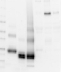AMBP | Bikunin  in the group Antibodies for Human/Animal  / Human Proteins / Other Human proteins at Agrisera AB (Antibodies for research) (AS04 039)