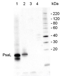 PsaL | PSI-L subunit of photosystem I in the group Plant/Algal Antibodies / Photosynthesis  / PSI (Photosystem I) at Agrisera AB (Antibodies for research) (AS06 108)