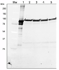 LOX | Lipoxygenase in the group Antibodies for Plant/Algal  / Developmental Biology / Lipid metabolism at Agrisera AB (Antibodies for research) (AS06 128)