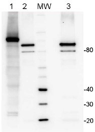 LOX | Lipoxygenase (Affinity purified) in the group Antibodies for Plant/Algal  / Developmental Biology / Lipid metabolism at Agrisera AB (Antibodies for research) (AS06 128A)