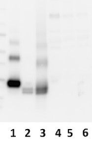 AMBP | Bikunin (50 µl) in the group Antibodies for Human/Animal  / Human Proteins / Other Human proteins at Agrisera AB (Antibodies for research) (AS06 173)
