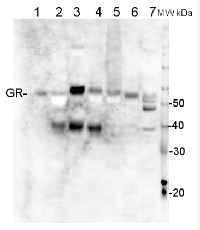 GR | Glutathione reductase in the group Antibodies for Plant/Algal  / Environmental Stress / Oxidative stress at Agrisera AB (Antibodies for research) (AS06 181)
