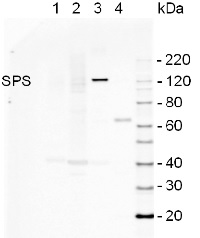 SPS | Sucrose phosphate synthase (maize) in the group Plant/Algal Antibodies / Carbohydrates at Agrisera AB (Antibodies for research) (AS06 185)