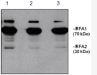 RFA | Baker's yeast replication factor A (100 µl) in the group Antibodies, Bacterial/Fungal at Agrisera AB (Antibodies for research) (AS07 214-100)