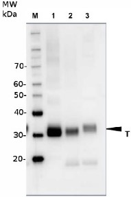 RFA | Baker's yeast replication factor A in the group Antibodies, Bacterial/Fungal at Agrisera AB (Antibodies for research) (AS07 214)