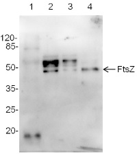 FtsZ | Procaryotic cell division GTPase (cyanobacterial) in the group Antibodies for Plant/Algal  / Developmental Biology / Cytoskeleton at Agrisera AB (Antibodies for research) (AS07 217)