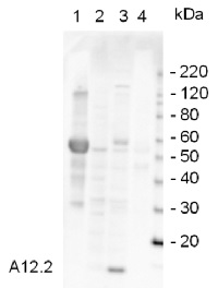 A12.2 | RNA polymerase I subunit (homolog of Pol II Rpb9) in the group Antibodies for Plant/Algal  / DNA/RNA/Cell Cycle / Transcription regulation at Agrisera AB (Antibodies for research) (AS07 225)