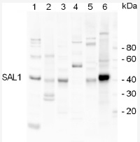SAL1 | Sal1 phosphatase in the group Plant/Algal Antibodies / Environmental Stress / Salt stress at Agrisera AB (Antibodies for research) (AS07 256)