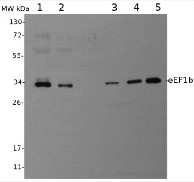 eEF1b | Elongation factor 1-beta in the group Antibodies for Plant/Algal  / DNA/RNA/Cell Cycle / Translation at Agrisera AB (Antibodies for research) (AS07 265)