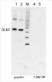 GLN2 | GS2, chloroplastic form of glutamine synthetase in the group Antibodies for Plant/Algal  / Nitrogen Metabolism at Agrisera AB (Antibodies for research) (AS08 296)