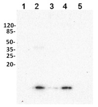 UBQ11 | Ubiquitin (affinity purified) in the group Antibodies for Plant/Algal  / Protein Modifications at Agrisera AB (Antibodies for research) (AS08 307A)