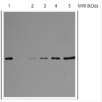 RPS1 | 30S ribosomal protein S1 in the group Antibodies for Plant/Algal  / DNA/RNA/Cell Cycle / Translation at Agrisera AB (Antibodies for research) (AS08 309)