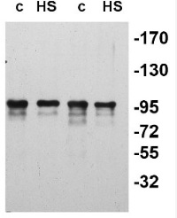 slr0156 | ATP-dependent chaperone clpB in the group Antibodies for Plant/Algal  / Environmental Stress / Heat shock at Agrisera AB (Antibodies for research) (AS08 355)