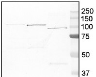 GP | Glycogen phosphorylase in the group Antibodies for Human/Animal  / Human Proteins / Other Human proteins at Agrisera AB (Antibodies for research) (AS09 455)
