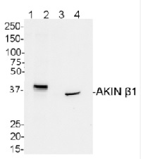 AKINB1 | SNF1-related protein kinase regulatory subunit beta-1 in the group Antibodies for Plant/Algal  / Developmental Biology / Signal transduction at Agrisera AB (Antibodies for research) (AS09 460)
