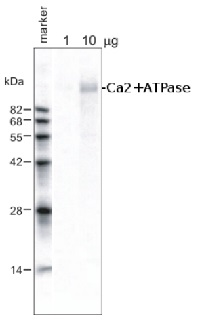 Ca2+-ATPase | Calmodulin-stimulated calcium-ATPase in the group Antibodies for Plant/Algal  / Membrane Transport System / Plasma membrane at Agrisera AB (Antibodies for research) (AS09 486)
