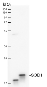 SOD1 aa 80-96 | superoxide dismutase 1, soluble  in the group Antibodies for Human/Animal  / Human Proteins / Oxidative stress at Agrisera AB (Antibodies for research) (AS09 538)