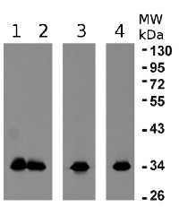 eEF1B-alpha1 an 2 | elongation factor 1B-alpha 1 and 1B-alpha 2 in the group Antibodies for Plant/Algal  / DNA/RNA/Cell Cycle / Translation at Agrisera AB (Antibodies for research) (AS10 678)