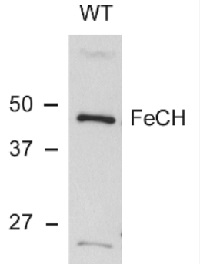 HemH | Protoporphyrin ferrochelatase (cyanobacterial) in the group Antibodies for Plant/Algal  / Photosynthesis  / Chlorophyll at Agrisera AB (Antibodies for research) (AS10 693)