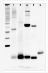 PsaC | PSI-C core subunit of photosystem I  in the group Plant/Algal Antibodies / Global Antibodies at Agrisera AB (Antibodies for research) (AS10 939)