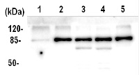 ATPase AAA2 domain in the group Plant/Algal Antibodies / Environmental Stress / Heat shock at Agrisera AB (Antibodies for research) (AS11 1754)