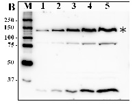 CrPDAT1 | Phospholipid: diacylglycerol acyltransferase in the group Antibodies for Plant/Algal  / Developmental Biology / Lipid metabolism at Agrisera AB (Antibodies for research) (AS12 1875)