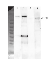 DCL3 | Dicer-like protein 3 in the group Plant/Algal Antibodies / DNA/RNA/Cell Cycle / microRNA at Agrisera AB (Antibodies for research) (AS12 2103)