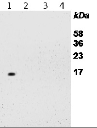 RPS14 | 40S ribosomal protein S14-1  in the group Plant/Algal Antibodies / Membrane Transport System / Endomembrane system at Agrisera AB (Antibodies for research) (AS12 2111)