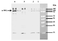 TPS1 | Trehalose-6-phosphate synthase 1 in the group Antibodies for Plant/Algal  / Developmental Biology / Signal transduction at Agrisera AB (Antibodies for research) (AS12 2635)