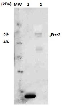 FtsZ2 | Plant cell division protein ftsZ2 in the group Plant/Algal Antibodies / Developmental Biology / Cytoskeleton at Agrisera AB (Antibodies for research) (AS13 2651)