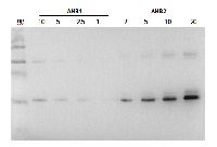 AHB2 | Hemoglobin 2 in the group Antibodies for Plant/Algal  / Environmental Stress / Oxidative stress at Agrisera AB (Antibodies for research) (AS13 2745)