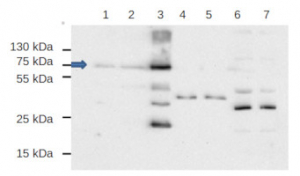 EDS1 | Enhanced disease susceptibility 1 in the group Plant/Algal Antibodies / Hormones / Slicylic acid at Agrisera AB (Antibodies for research) (AS13 2751)