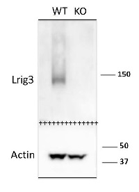 mLrig3-207 | Leucine-rich repeats and immunoglobulin-like domains protein 3 in the group Antibodies for Human/Animal  / Human Proteins / Other Human proteins at Agrisera AB (Antibodies for research) (AS14 2789)