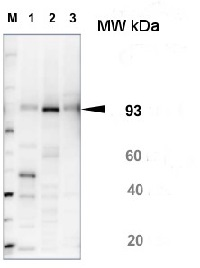 SUS1 | Sucrose synthase 1 in the group Plant/Algal Antibodies / Carbohydrates at Agrisera AB (Antibodies for research) (AS15 2830)