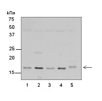 RPS7 | Ribosomal protein S7 (chloroplastic) in the group Antibodies for Plant/Algal  / DNA/RNA/Cell Cycle / Translation at Agrisera AB (Antibodies for research) (AS15 2877)
