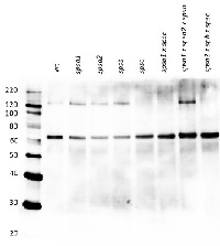 SPSC | Sucrose phosphate synthase isoform C in the group Antibodies for Plant/Algal  / Photosynthesis  / Sucrose metabolism at Agrisera AB (Antibodies for research) (AS15 2997)