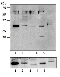RPS5 | Ribosomal protein S5 (chloroplastic) in the group Antibodies for Plant/Algal  / DNA/RNA/Cell Cycle / Translation at Agrisera AB (Antibodies for research) (AS15 3075)