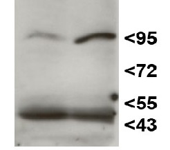 HEN1 | HUA ENHANCER 1 in the group Plant/Algal Antibodies / DNA/RNA/Cell Cycle / microRNA at Agrisera AB (Antibodies for research) (AS15 3095)