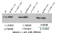 Rnr1 | Ribonucleoside-diphosphate reductase large subunit in the group Antibodies, Bacterial/Fungal at Agrisera AB (Antibodies for research) (AS16 3639)