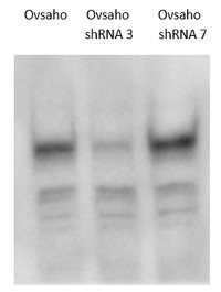 LRIG1 | Lig-1 (rabbit antibodies) in the group Antibodies for Human/Animal  / Human Proteins / Other Human proteins at Agrisera AB (Antibodies for research) (AS18 4165)