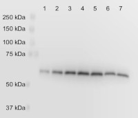 PGDH3 | Phosphoglycerate dehydrogenase 3 (chloroplastic)  in the group Antibodies for Plant/Algal  / Arabidopsis thaliana  at Agrisera AB (Antibodies for research) (AS20 4391)