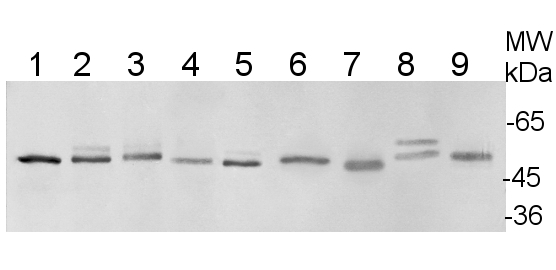 western blot using plant anti-UGPase antibodies