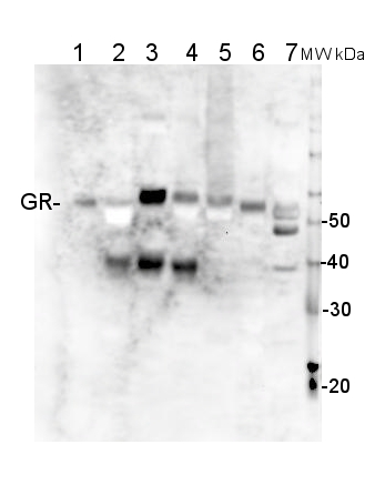 western blot using anti-GR antibodies