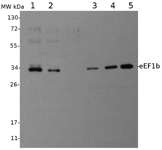 western blot using anti-eEF1b antibodies