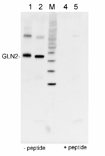 Western blot detection using anti-GLN2 antibodies