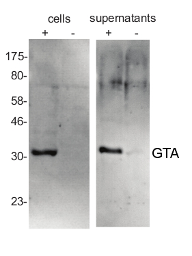 western blot detection using anti-GTA antibodies