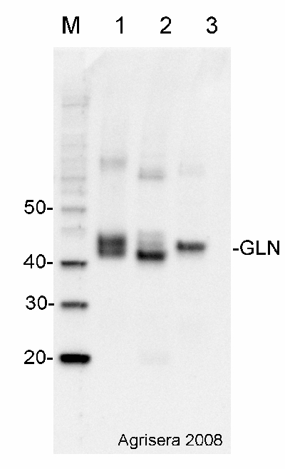 Western blot detection using GLN1 GLN2 antibodies
