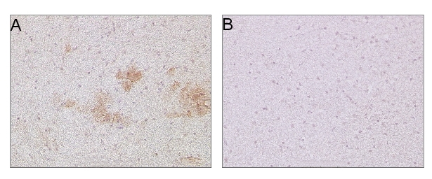 immunolocalization using Abeta monoclonal antibody