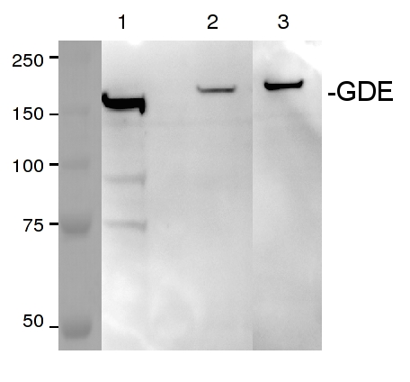 western blot using anti-GDE antibodies